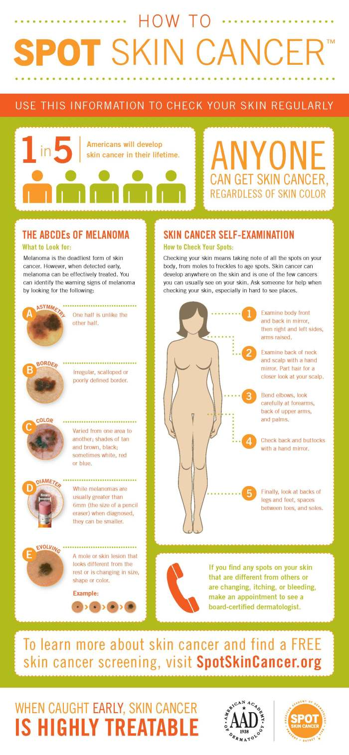 how-to-spot-skin-cancer-infographic